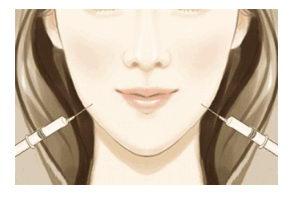瘦脸针,怎样把大脸变成小脸?【长沙瑞澜整形】