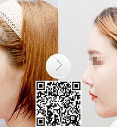 自体软骨隆鼻效果怎么样?福州美莱华美整形用心打造翘鼻