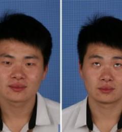天津美莱男士双眼皮做的怎么样 选取正规医院 美丽更有保障