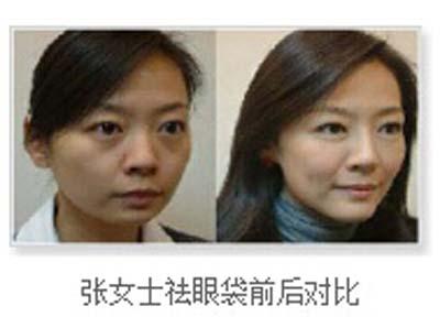 20180121前合条件报名福州美莱祛眼袋送眼部整形打造基金