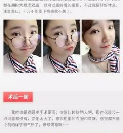 有在上海玫瑰整形医院做过全切双眼皮的吗?