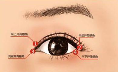 做开眼角手术就可以把眼睛变大吗?北京惠平霖连喜艳院长