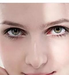 开眼角手术有哪些注意事项,价格是多少呢?【长沙瑞澜整形】