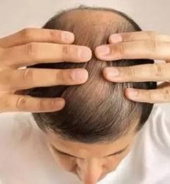 姜嬷嬷的氨基酸无硅油生姜洗发乳能防脱吗?