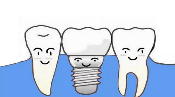 博士目前所采用的博士微创即刻种植技术是通过上千位齿科导师历经多年的不断摸索、实践、总结精研而成,其微创性及精细化在世界种植领域开创先河,摆脱了传统种植牙繁琐低效的步骤,大大缩短了种植所需的时间,全口种植仅需30分钟,不仅领先中国传统的种植牙技术,更是超越了欧美的种植技术。博士严格把关种植牙质量,一颗种植牙至少可以用二十年,保养得当可长久使用。这是任何一种假牙都无法比拟的巨大优势。