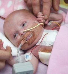 英国一新生儿心脏长体外 手术后奇迹生还