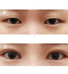 为什么双眼皮失败修复越来越难修复?-连喜艳双眼皮修复