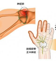 天一冷关节就僵硬疼痛 是得了类风湿关节炎么?