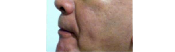 美国胸腔内科医师协会推荐有助减少打鼾的六个口腔内运动