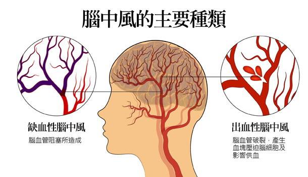 气温骤降小心脑中风 这5征兆发生时最危险