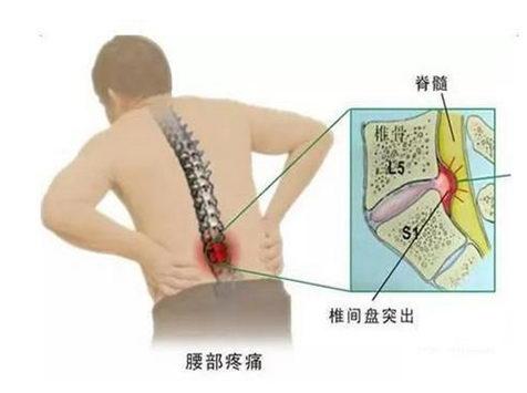 铁腰板真的有效果吗:腰突要注意 正确治疗是关键