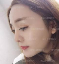 上海美立方整形鼻修复做得好吗 没想到鼻修复可以让我美出混血感