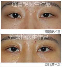 连喜艳做的9度双眼皮效果怎么样,9度双眼皮手术多少钱?