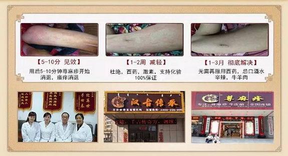 荨麻疹临床报告