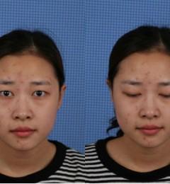 天津美莱双眼皮手术价格表 天津美莱轻轻一整容貌更正