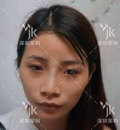 深圳军科整形刘月更自体脂肪填充真人案例――爱美需要美的自然