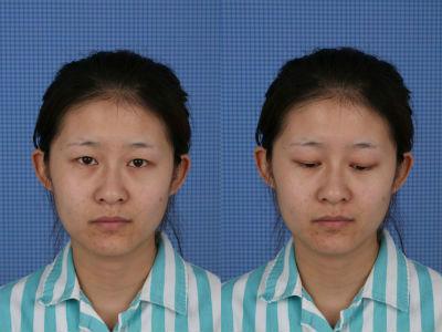 天津美莱埋线双眼皮能保持多久,在这让您美的更放心