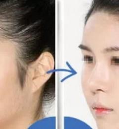 浏阳瑞澜医疗美容医院怎么样?玻尿酸隆鼻会不会变形呀?