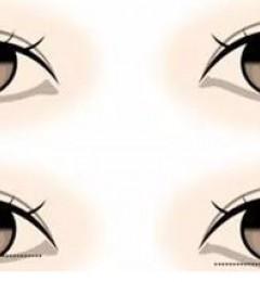 浏阳瑞澜美容医院靠谱吗?为什么有人会选择埋线双眼皮?