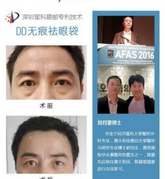 深圳军科整形刘月更祛眼袋真人案例解读:祛眼袋就是这么简单