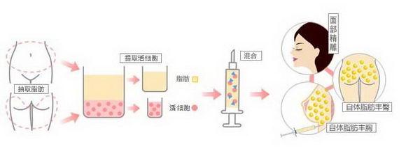 深圳军科整形刘月更自体脂肪填充真实案例 精湛的技艺被人赞叹不已