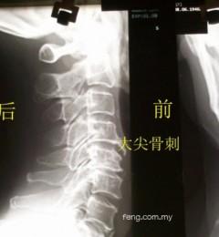 关节长了骨刺不可怕 手术治疗失败才真要命