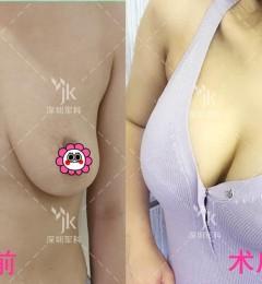 深圳军科整形刘月更假体丰胸做的超自然 美丽在于选择