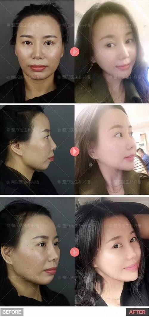 案例展丨在首尔丽格经历凸嘴手术拥有美丽侧脸曲线