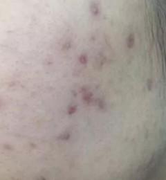 永州瑞澜医疗美容医院?激光祛痘印多久能恢复?