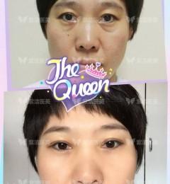 北京紫洁俪方整形医院去眼袋效果 匠心塑美 回归医疗本质