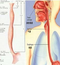食道癌咽下食物梗噎胸骨后疼痛那医院能治疗?西安大秦食道癌医院