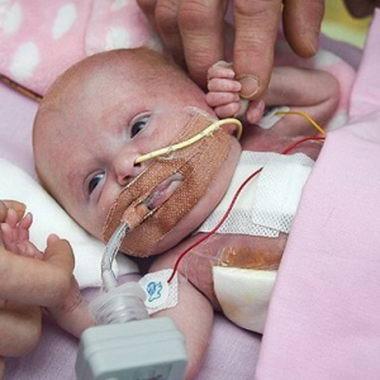 英新生儿心脏长体外 手术后奇迹生还