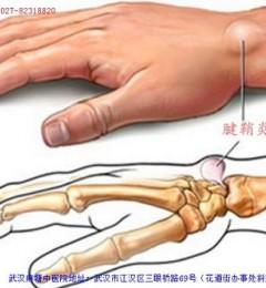 腱鞘炎复发 武汉麻塘专家教你怎样治疗预防