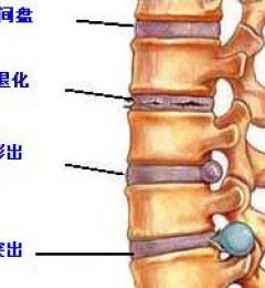 武汉麻塘解答腰椎间盘膨出不同时期的症状表现