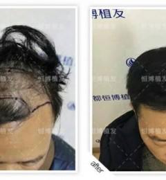 植发手术的效果如何?[恒博植发]