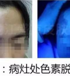 【案例实拍】额头白斑扩散严重致眉毛变白,如何治疗效果更好?