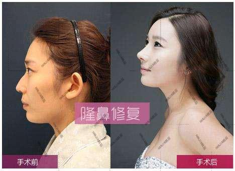 曝光整形事故毁容女子隆鼻被坑惨了,武汉韩辰医院救助了我