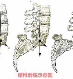 武汉麻塘专家解答腰椎滑脱正确护理方法