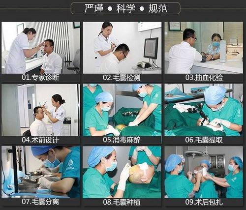 深圳青逸植发收费平价 生发新主张人生新篇章
