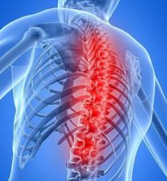 五种治疗,你适合那种骨质增生的治疗方法