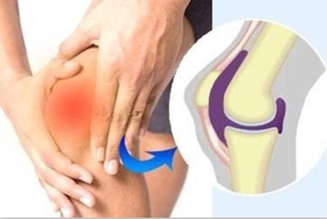 武汉麻塘解答膝盖滑膜炎如何治疗 治疗措施有哪些