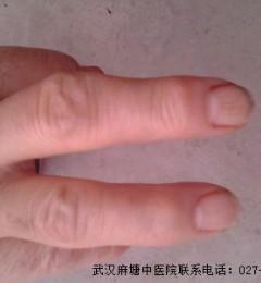 武汉麻塘专家提醒 手指类风湿需注意三点