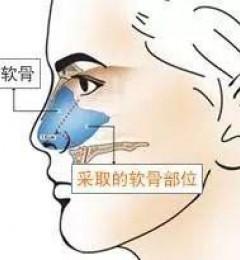 北京米扬丽格整形:鼻中隔的优势有哪些呢?