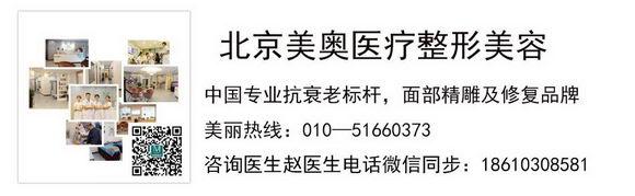 北京美奥整形双眼皮手术好不好 展现你自己的个人魅力