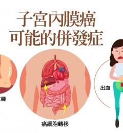 子宫内膜癌常见的4种有效治疗方式