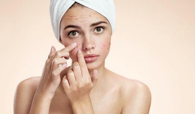青春期长痘痘,是由于内分泌失调所导致