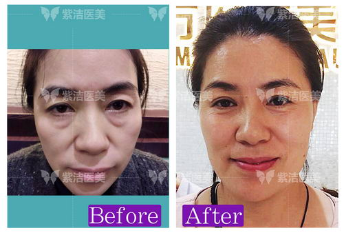 北京紫洁专家张金娥技术怎么样 给您美的健康,健康的美。