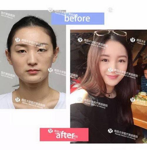 南昌大学医疗美容做双眼皮如何?请找涂飞翔院长很6
