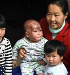 黔江花儿姐弟被烧伤,玛恩皮肤橙丝带疤痕公益提供援助