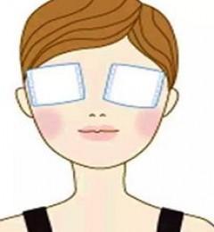 悦尔医美正规靠谱吗?双眼皮手术恢复快吗?